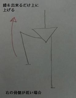 右骨盤1.jpg