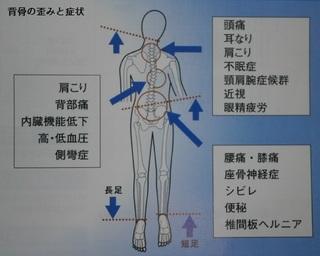 背骨の歪みと症状.jpg