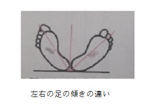違い左右の足の傾きの.png