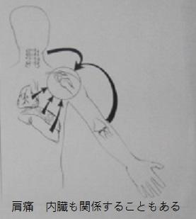 肩痛1.jpg